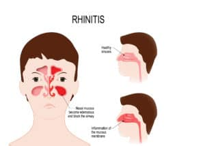 Diagram showing healthy sinus and one showing rhinitis
